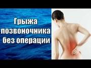 Лечение позвоночной грыж